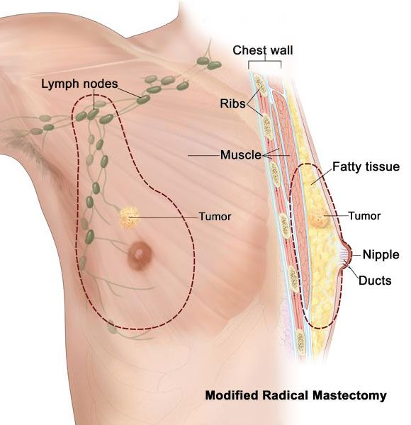 Famous male breast cancer that