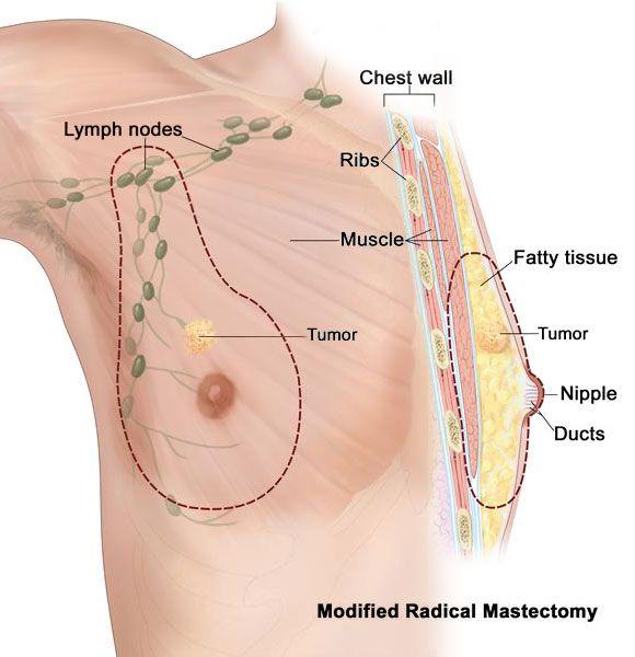 breast cancer not in men jpg 1500x1000