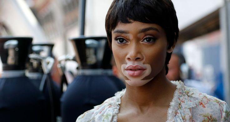 Γουίνι Χάρλοου -To μοντέλο με τη λεύκη δείχνει υπερήφανα τα σημάδια του φορώντας σέξι μπικίνι στο Μονακό