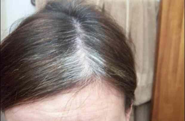 Cijelog ste života bili u zabludi: Kosa ne sijedi zbog starosti, ovo je jedini razlog