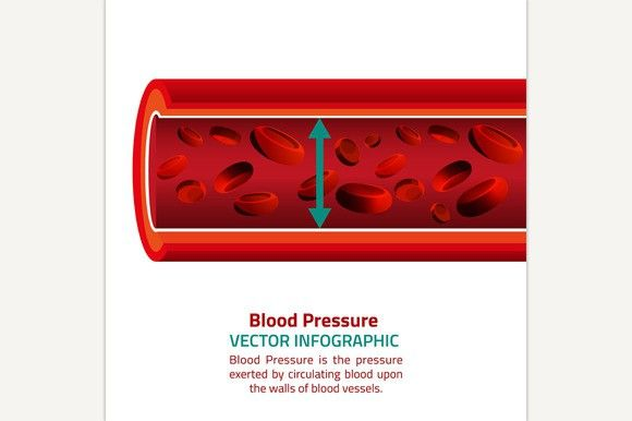Blood Pressure Infographic. Human Icons. $3.00