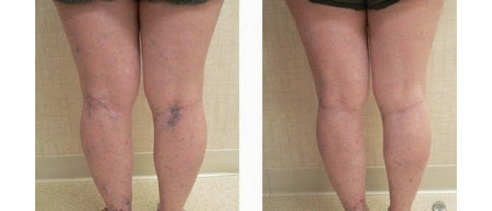 <p>As varizes são por vezes azuis escuras ou roxas, são volumosas e torcidas. As varizes normalmente estão no interior das pernas ou na parte muscular das mesmas. As varizes são um problema que nenhuma mulher gosta de ter. As varizes são uma das coisas que mais preocupam as mulheres, no …</p>