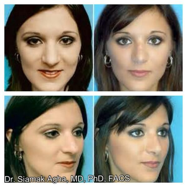 """You've done your analysis, had many consultations, selected your plastic surgeon and scheduled the surgery. Now what? Following some prudent """"rhinoplasty before and after"""" suggestions will shorten your recovery, help to shield and preserve your health and improve your outcome."""