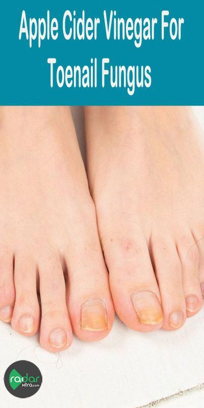 Toenail fungus is a common fungal infection that grows in moist ...