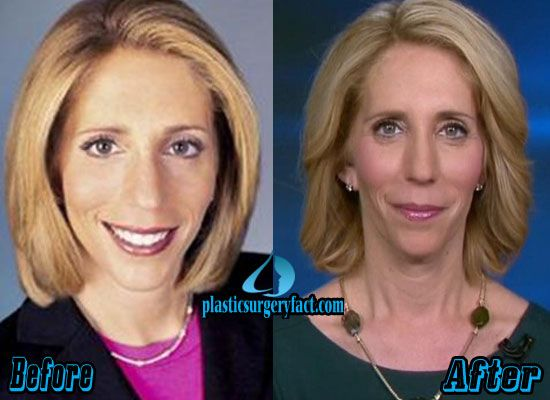 Dana Bash Plastic Surgery Before and After | http://plasticsurgeryfact.com/dana-bash-plastic-surgery-before-and-after/