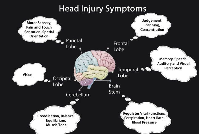 brain injury symptoms - Google Search