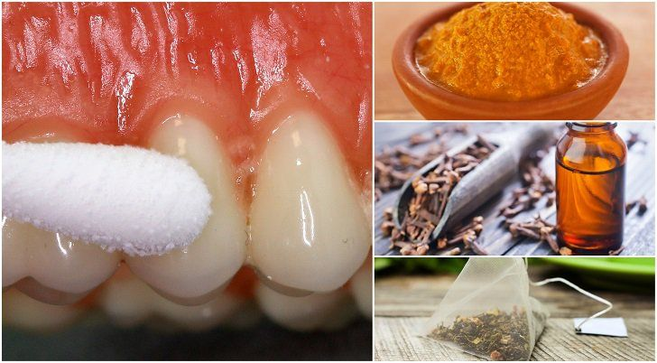 2. Clove oil Cloves have anti-inflammatory, antibacterial, antioxidant and anesthetic properties that help alleviate tooth pain and fight infection. It's a top oil to have on hand for dental issues in particular, and it's long been used in treatments for problems like toothaches when the sufferer is unable to get to the dentist right away. Cloves have traditionally been used as a remedy to numb…   [read more]
