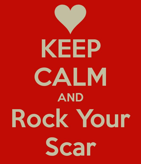 KEEP CALM AND Rock Your Scar,  To my son Brady... Hlhs