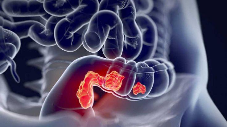 Una ilustración médica en 3D de un cáncer de colon