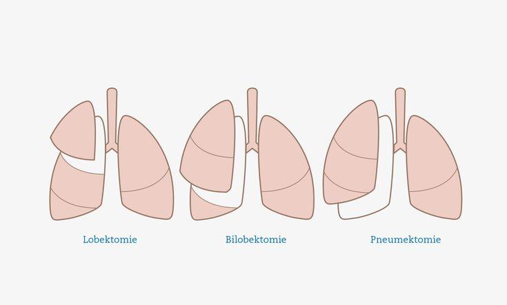 Infografik - Entfernung von Lungenlappen