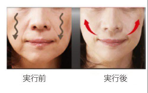 たるんだ頬を引き締める4つの方法 – みんな健康