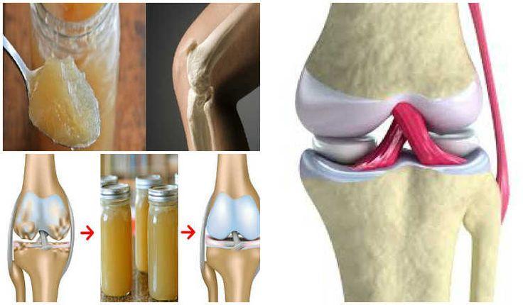 AC24.cz - Lékaři jsou v úžasu. Tento přírodní recept obnovuje klouby a kolena bez toxických léků!