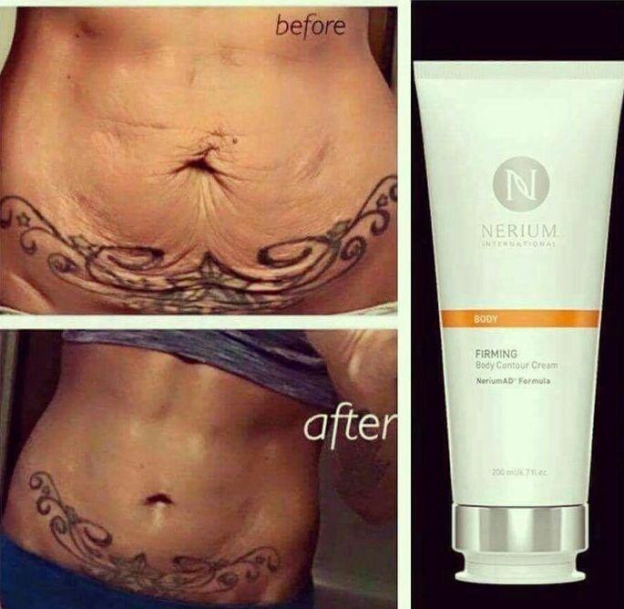 Ich liebe die Ergebnisse mit Nerium Firm !! #SkinTighteningAfterWeightLoss – Sport