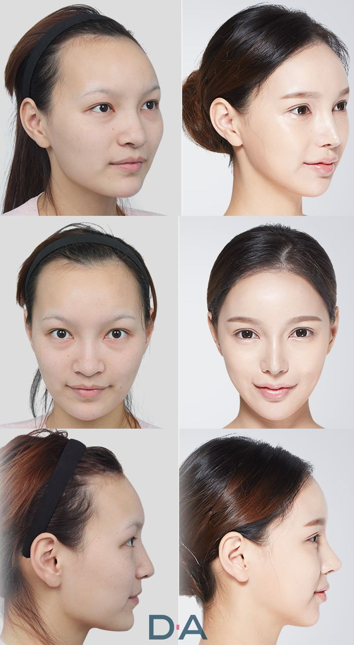 Before and after photos of real DA patients! DA plastic surgery and dermotology located in Gangnam. More info: en.daprs.com Enquiry/make a reservation: info-en@daprs.com #daplsticsurgery #daprs #plasticsurgery #cosmeticsurgery #beauty #korea #model #damodel #facialcontouring #DA #vline #facecontourig #koreanplasticsurgery #jawsurgery #plasticsurgeryinkorea #koreabeauty #koreabeauty #gangnam #gangnamplasticsurgery #beforeandafter #realpatients #beforeafter #DApatient