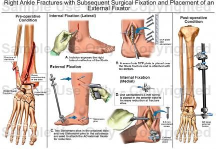 Right Ankle Fractures with Subsequent Surgical Fixation and Placement of an External Fixator