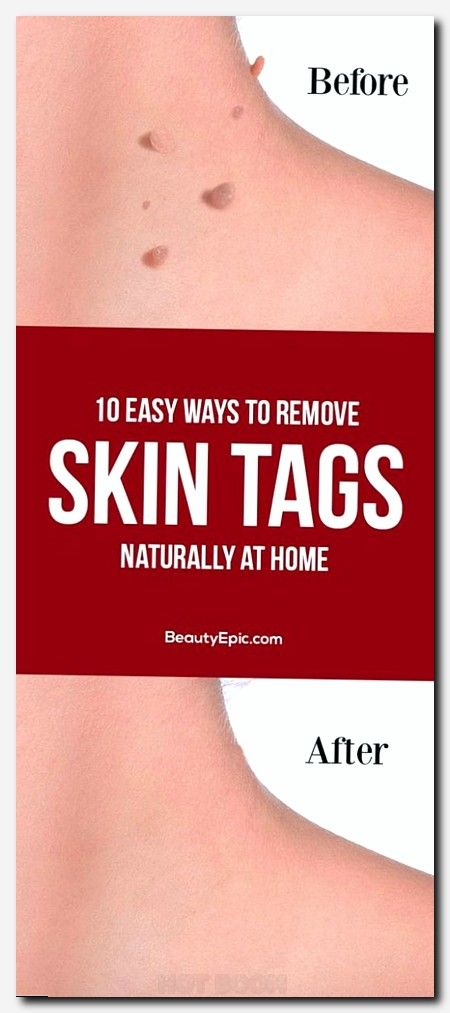 #skincare #skin #care total skincare centre, home remedy dry skin, what is a beauty parlour, simple beauty tips, top rated beauty products 2017, beauty care images, skin problems on fingers, vitamin e and skin, face threading, tips of pimples, winter care, causes of back acne, the bath and body works, how to layer skin care, foot skin conditions, sensitive burning skin