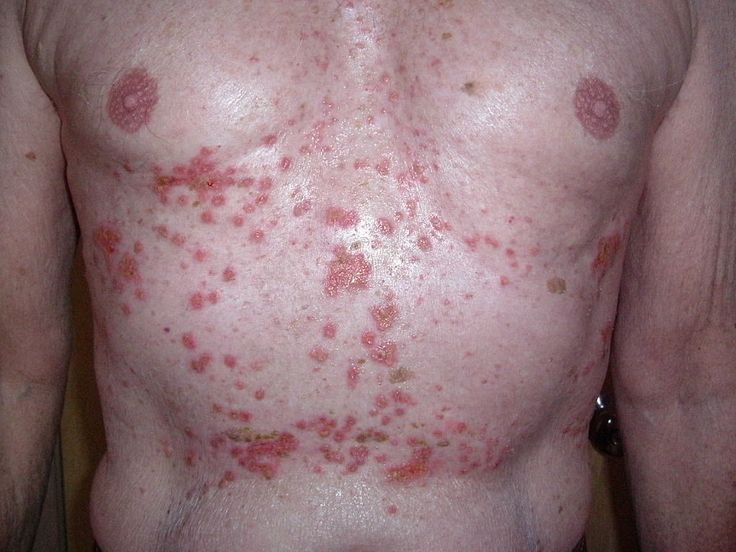 Allergic reaction symptoms range from unpleasant skin rash to life-threatening anaphylactic shock. You can find out developing which symptoms can occur.