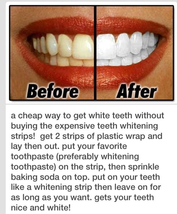 These Tips For Whitening Sensitive Teeth Will Give