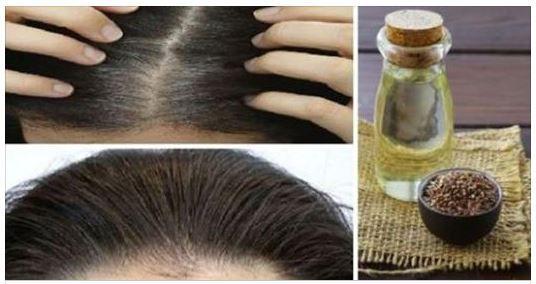 Des remèdes naturels pour redonner aux cheveux blancs leur couleur initialeAvec les années, la croissance des cheveux et leur renouvellement ralentissent. Ils changent de couleur, deviennent plus fins et plus fragiles. Les cheveux blancs résultent de la production de peroxyde d'hydrogène avec l'âge. Il est possible de prévenir le vieillissement prématuré des cheveux et de … Continuer la lecture de Des remèdes naturels pour redonner aux cheveux blancs leur couleur initiale→