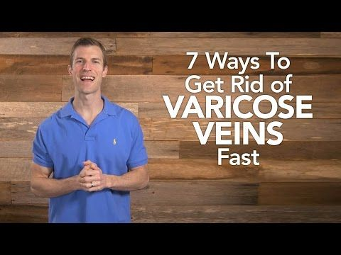 7 Ways To Get Rid of Varicose Veins Fast - YouTube