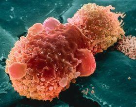 Zwalczanie nowotworów sodą oczyszczoną – przepis. | Prawda.xlx.pl