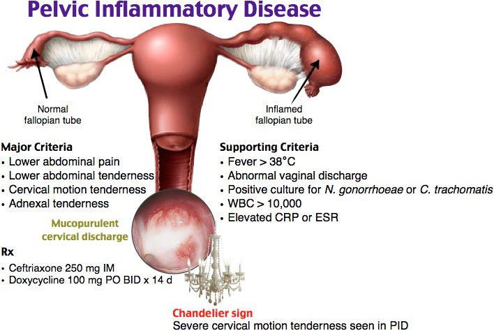 Pelvic Inflammatory Disease Tx Ceftriaxone 250 mg IM and doxycycline 100 mg BID for 14 days. Metronidazole is sometimes added.