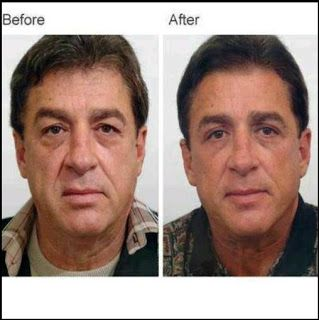 luminesce before and after - Our product works great on men and women