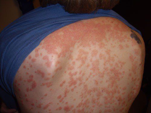 Research opens new treatment strategies for specific form of psoriasis - http://scienceblog.com/483863/research-opens-new-treatment-strategies-specific-form-psoriasis/