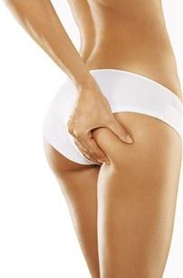 ultrazvok, oblikovanje telesa