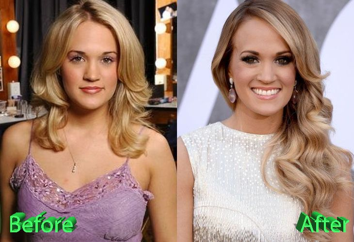 Carrie Underwood Before And After Plastic Surgery Carrie