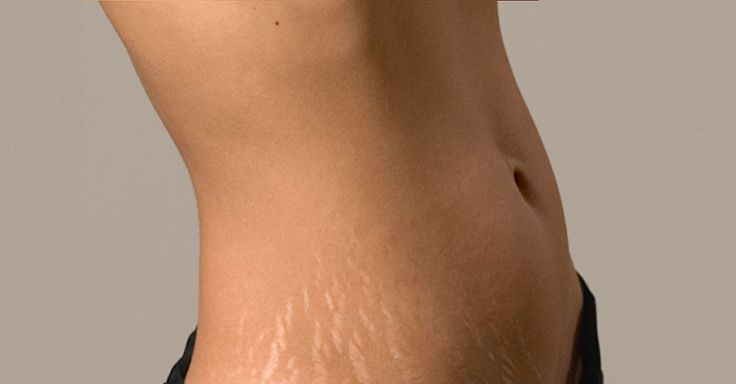 Let's face it, nobody wants stretch marks, or as they are referred toin the scientific community, striae atrophicae. Those who find themselves with stretch marksaremost likely more thana little self-conscious about them — it's hard not to be! Understanding the reasons people getstretch marks to begin with is one key to getting rid of them....