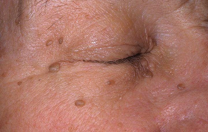 facial skin issues jpg 1080x810