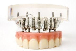 The Daily Dental: Types Of Implants