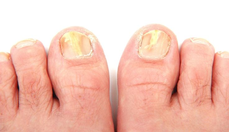 Fungal nail infection - Natural remedies