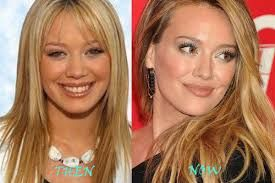 Hilary Duff Plastic Surgery – Before and After | Celebrity Plastic Surgery