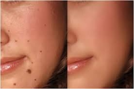 Congenital nevi are moles that appear at birth & they occur in about one in 100 people. These moles may be more likely to develop into melanoma (cancer) than are moles that appear after birth.  Read more:  http://howtocurethat.com/