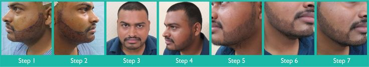 Beard Transplant done at Dezire Clinic Pune. Visit our website to know details of Beard Transplant Cosmetic Surgery in India, Cost of Beard Transplant for Men. Call on 9222122122 for free consultation.