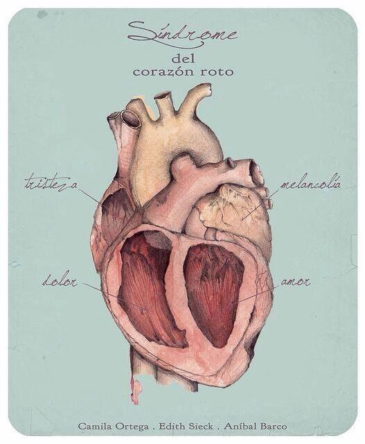 Resultado de imagen de sindrome del corazon roto camila