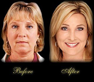 Brow Lift Results | with the endoscopic brow lift procedure both can achieve good results ...