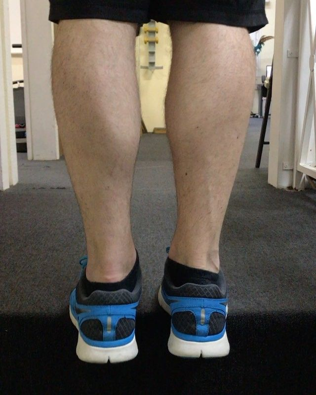A patient this morning demonstrating a single leg eccentric contraction of a heel raise. It is extremely important to work a muscle using eccentric isometric and concentric contractions - - - - - #therapy #rehab #rehabilitation #injury #injured #renew #renewed #exercise #workout #train #training #muscle #education #eccentric #heelraise #movement #mechanics #focus