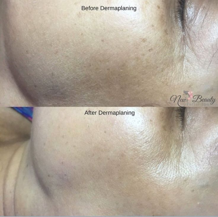 Before and after Dermaplaning treatment.