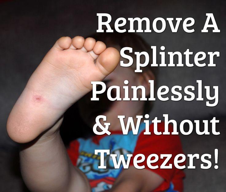 Remove A Splinter... Without Tweezers!