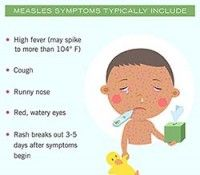 Please, Dont Ignore the Causes and Symptoms of Measles (Rubeola)