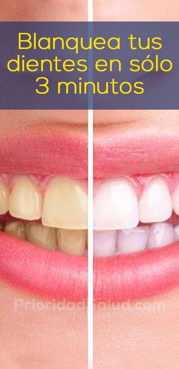 Como blanquear tus dientes en tan solo 3 minutos, sin gastar en blanqueamiento dental. Haz esto desde tu propia casas para tener dientes blancos, sanos y libres de caries.