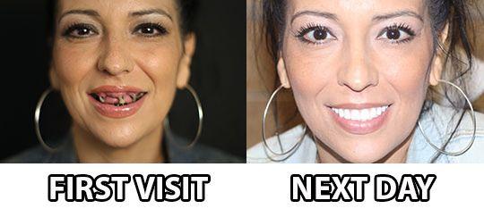 Diga adiós a Dentaduras y Fallando dientes con clinica dental barcelona