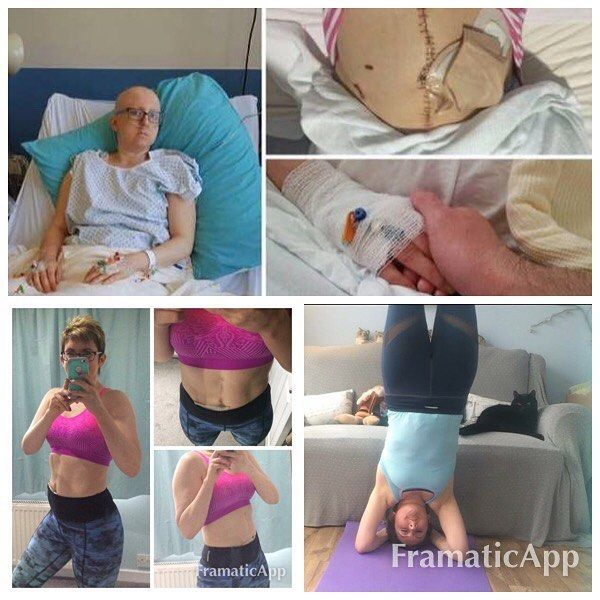 It's now 15 months since I was diagnosed with stage four aggressive ovarian cancer - mets in multiple organs throughout abdomen and chest.  6 rounds of chemo and amazingly the largest op they've done on a stage four patient....removing several organs and parts of major organs (liver etc). Treatment ended in August 2016 and I've been in remission since. Not only am I still here but I am loving life! I even trained as a yoga instructor during treatment!  Don't fear the diagnosis - defy it…