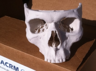 Our anatomically correct 3D design come at an exceptionally low price as compared to the lifelong advantages and cost savings received by the patient
