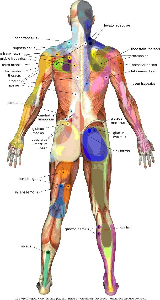 TRIGGER POINTS ARE TINY KNOTS THAT DEVELOP IN A MUSCLE WHEN IT IS INJURED OR OVERWORKED. COMMONLY A CAUSE OF MOST JOINT PAIN, THEY ARE KNOWN TO CAUSE HEADACHES, NECK AND JAW PAIN, LOW BACK PAIN, TENNIS ELBOW, AND CARPAL TUNNEL SYNDROME.