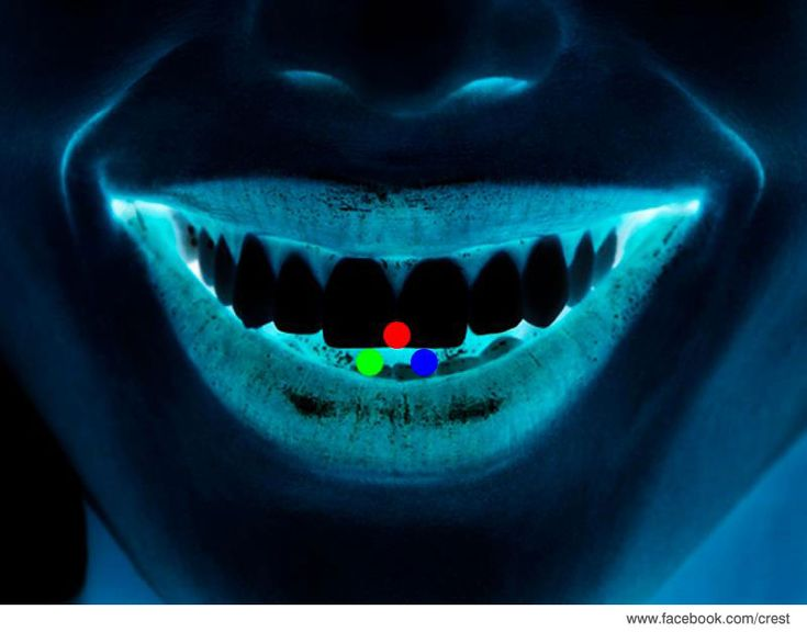 Stare at the red dot for 30 seconds and then look away...you should see a beautiful white smile when you look again...call us for whitening options.