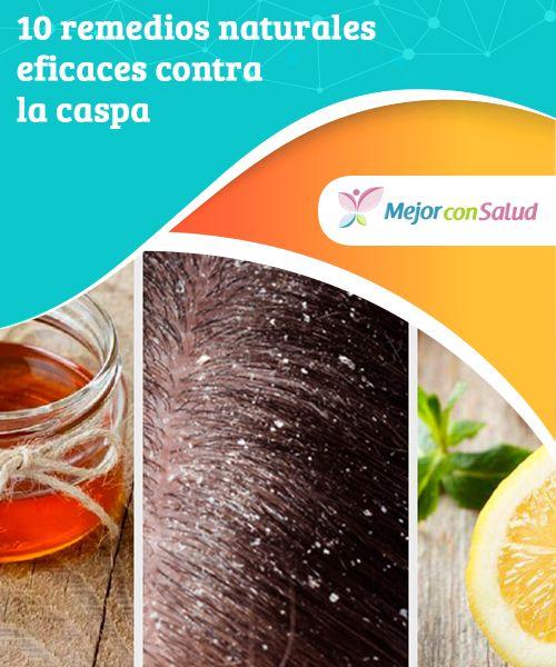 10 #remediosnaturales eficaces contra la #caspa  Siempre es bueno tener a mano una #lista de remedios naturales eficaces contra la caspa. La caspa no solo es un problema #estético.